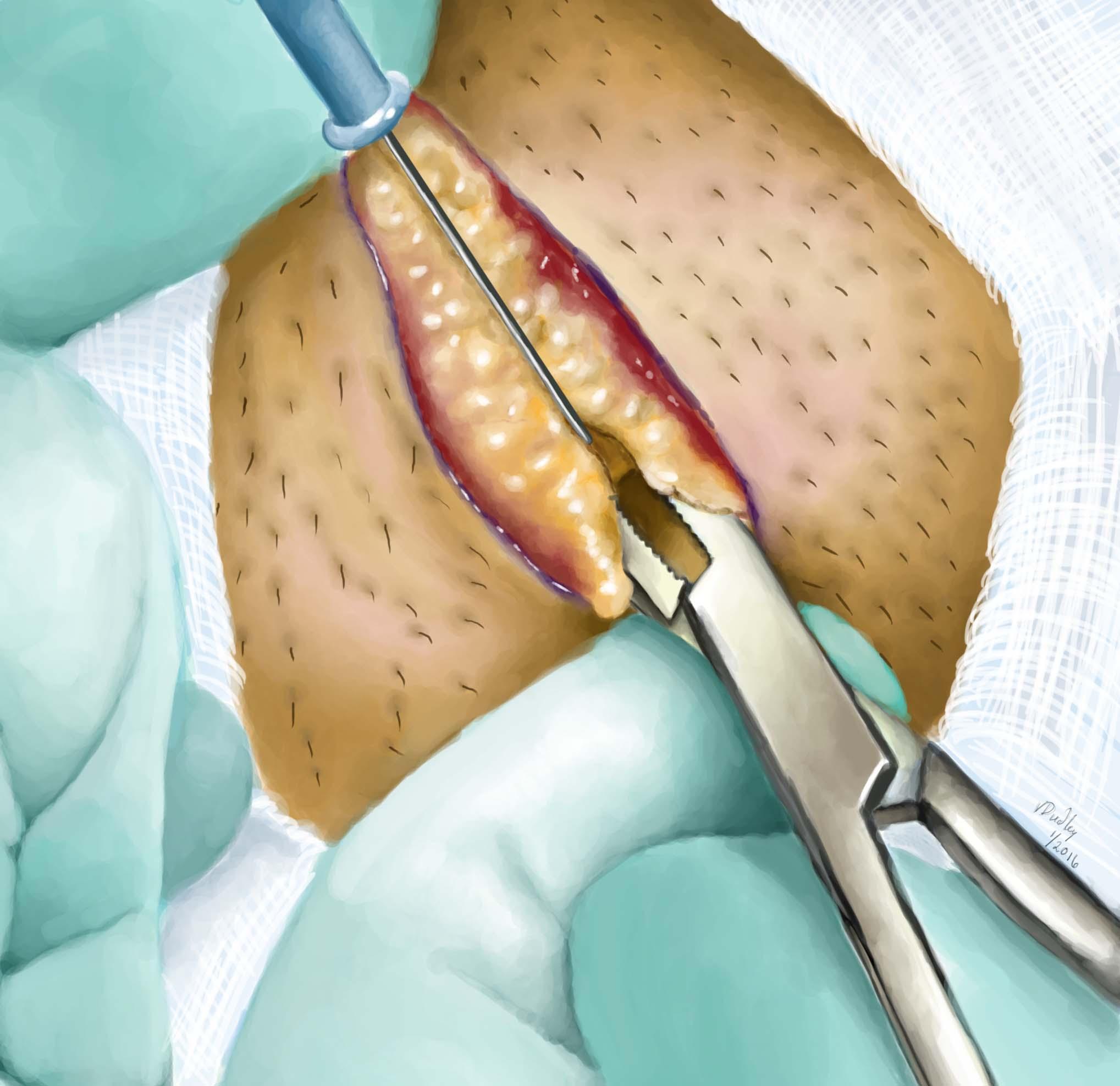 Fertility Preserving Hernia Repair   Center for Male Reproductive ...